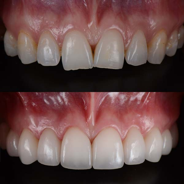 Before & After Porcelain Veneers