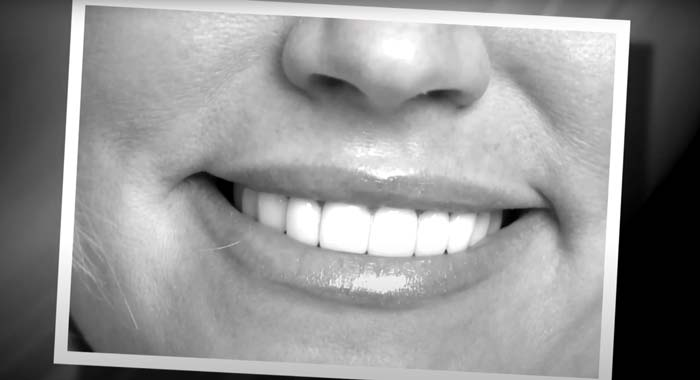 Heather's smile from porcelain veneers